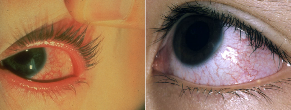 RED OR PINK EYE IN KD.